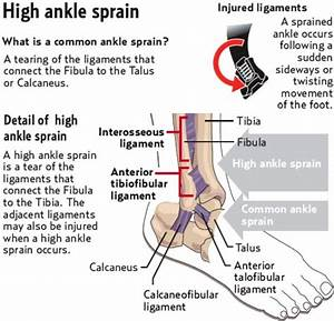 Guide For Speed Up High Ankle Sprain Recovery Time