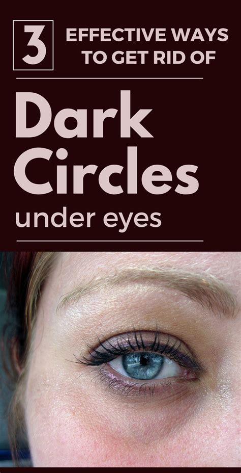 3 Effective Ways To Get Rid Of Dark Circles Under Eyes Womenideasnet