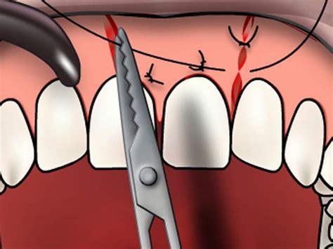 zahnfleischnaht dental blogdental blog