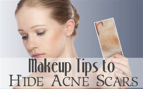 Best Makeup For Acne Scars Style Guru Fashion Glitz Glamour Style Unplugged