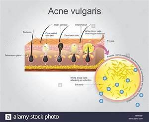 Acne Vulgaris Is A Long