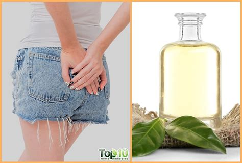 Home Remedies For Pilonidal Cysts Large Pimple At Bottom