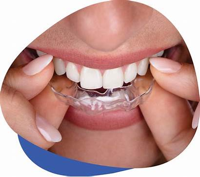 Bruxism Dental Treatment Services Tmj