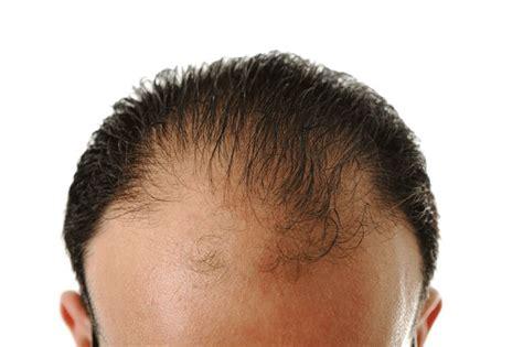 Trichostem Hair Regeneration Centers