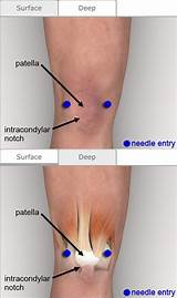 lateral knee steroid injection