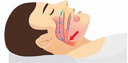 Sleep Apnea Obstructive Snoring Ent Specialist Chicago