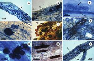 Arbuscular Mycorrhizal And Dark Septate Endophytic Fungi In Roots Of