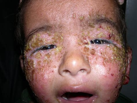 Images Of Impetigo In Children Adults And On Every Part
