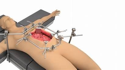 Hipec Retractor System Surgical Thompson Retractors Exposure