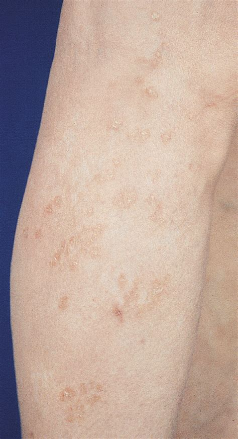 successful treatment  cutaneous sarcoidosis