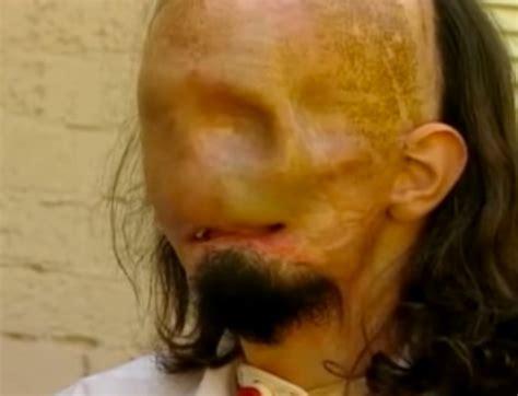 verunglueckter arbeiter bekommt gesichtstransplantation