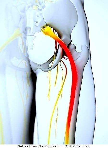 dolore al gluteo destro  sinistro  gamba anca sciatica