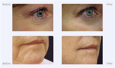 laser skin tightening  michigan cooltouch special