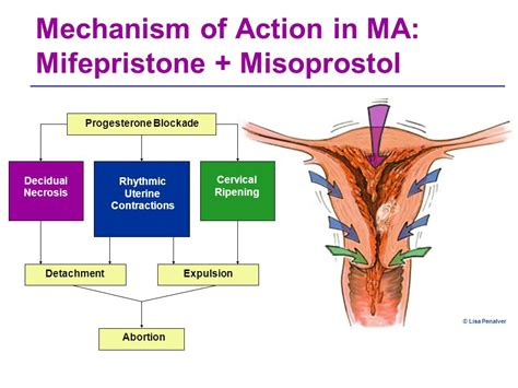 Cytotec Rectal Administration Medical Abortion With Mifepristone And Misoprostol
