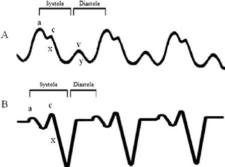 cvp waveform  cardiac tamponade  normal cvp waveform