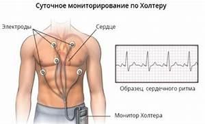 Холтер при гипертонии