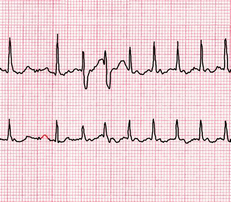 Heart palpitations: Should I be worried if my heartbeat is ...