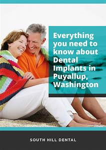 Everything You Need To Know About Dental Implants In Puyallup