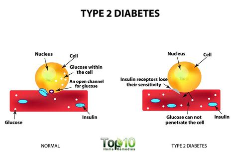 10 Risk Factors For Type 2 Diabetes  Top 10 Home Remedies. Laptop With Displayport Car Donation Veterans. Goodyear New Britain Ct Lowest Auto Insurance. Pittsburgh Massage Therapy Top It Conferences. Best Way To Find Out Credit Score. Washington University Continuing Education. Best Colleges For Industrial Design. Travel And Tourism Courses Mozy Phone Number. Best Dotnetnuke Hosting Uneven Breast Implants