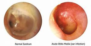 In Lieu Of Lecture  Ear Infections  Broken Bones