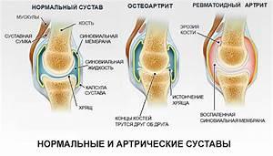 Как лечить ревматоидный артрит коленного сустава лекарствами