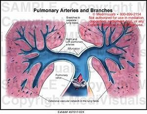 Medivisuals Pulmonary Arteries and Branches Medical ...