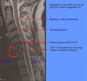 osteochondrose behandlung