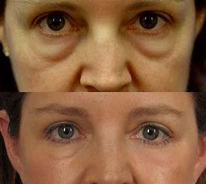 Камфорное масло применение в косметологии от морщин отзывы