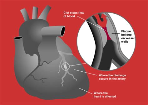 heart attack definition  symptoms