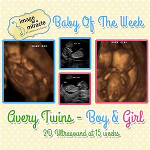 Baby of the Week - Avery Twins! - Image of a Miracle 4D ...