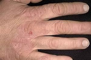 Псориаз на пальцах рук лечение фото