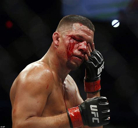 conor mcgregor leaves nate diaz pouring  blood