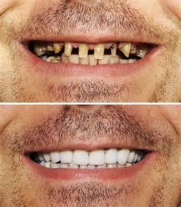 Dental Bridges for Missing Teeth