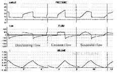 mechanical ventilation modes rcp rt respiratory respiratory love pinterest mechanical