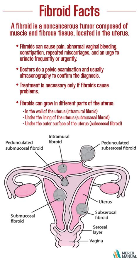 By Age 45 About 7 Out Of 10 Women Develop Fibroids Of The