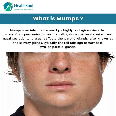 Mumps Disease Treatment