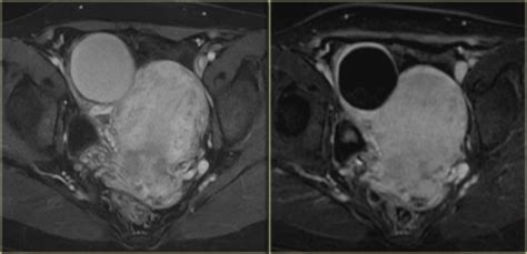The Radiology Assistant : Ovarian Cysts - Common lesions