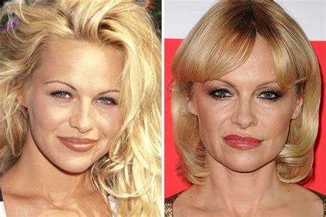 celebrity facelifts