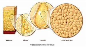 About Vaser Liposuction