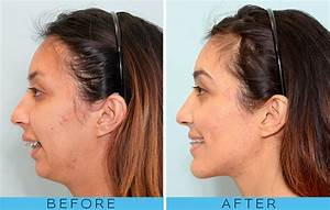 Overbite Surgery 101: Everything You Need to Know