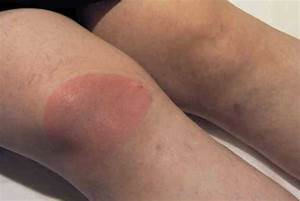 Medical Pictures Info – Lyme Disease