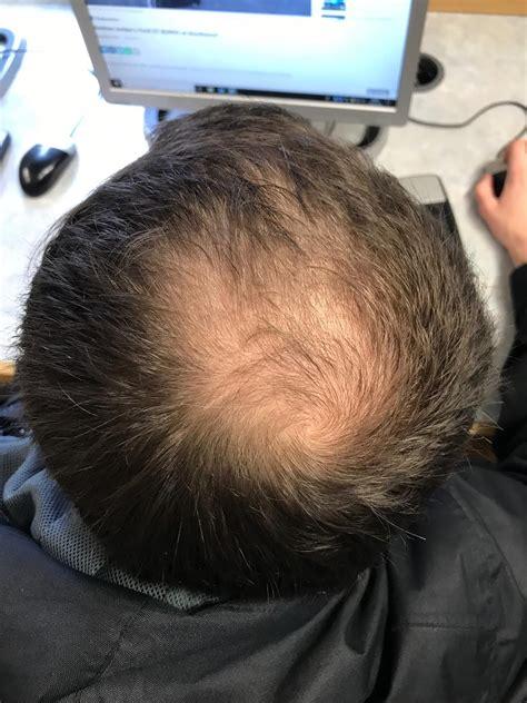 pattern hair loss wikipedia