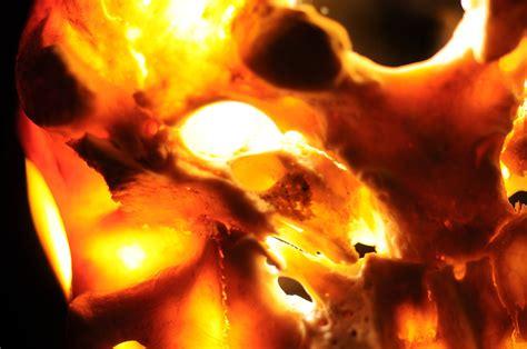Human Skull Macro Near Acustic Meatus Meddling With