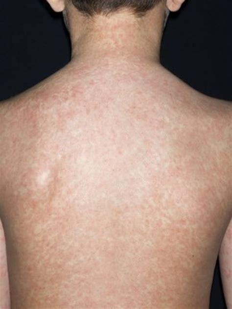 Death Risk In Swansea Measles Outbreak Bbc News