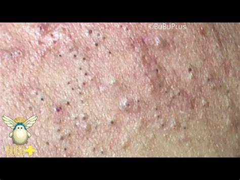 forehead blackheads cystic acne  pimples extraction