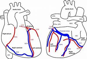 Anatomy Of The Heart And Major Coronary Vessels In