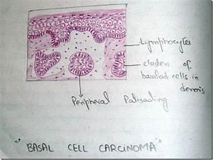 Histology Slides Database  Basal Cell Carcinoma