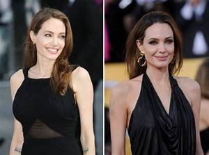 Angelina Jolie Double Mastectomy Surgery Before and After ...