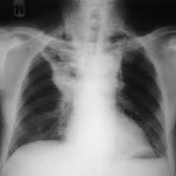 Compression Atelectasis Lung