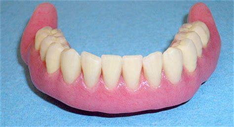costo protesi mobile dentiera mobile pro e contro